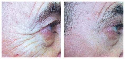 candela smoothbeam laser hair removal candela smoothbeam laser candela