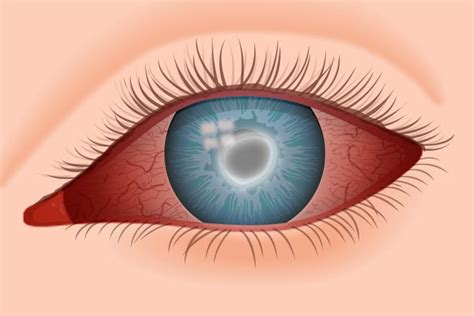 eye lens acanthamoeba keratitis info for contact lens wearers