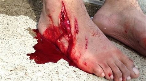 How To Cut Open A I Cut My Foot Open