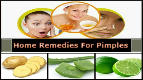 home remedies for pimples acne treatment for