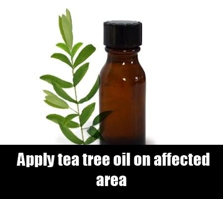 tea tree oil for bed bugs top 17 herbal remedies for bed bugs various herbal