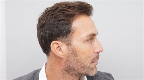 jobs in hair transplant technicianjobs london ex man city footballer ashley ward becomes latest star to
