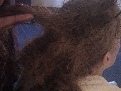 removal of matted hair birds nest mass