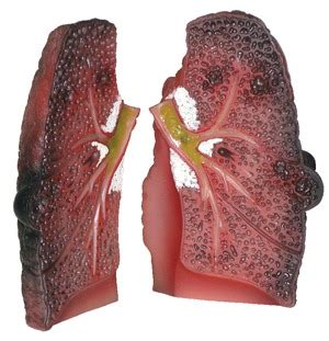 lung cross section cough up a lung model