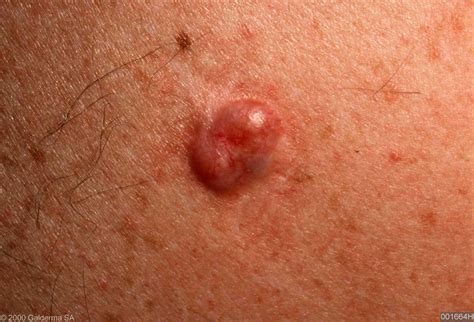 basal cell tumor the gallery for gt nodular basal cell carcinoma