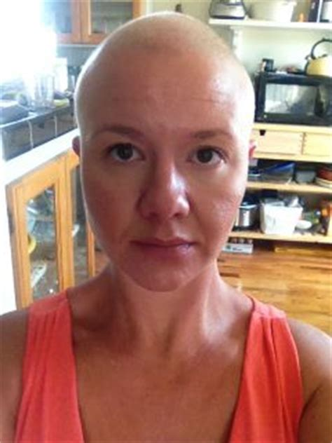 Headshave In Pregnancy   i lost all my hair during pregnancy page 3 of 3 all 4