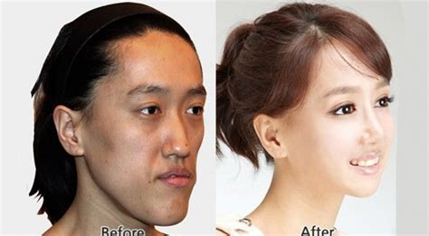 orthognathic surgery age 50 and over korean plastic surgery before and after 14 there is hope