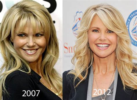 Christie Brinkley Gets Emergency Surgery by Did Senior Model Christie Brinkley Plastic Surgery