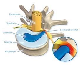 bandscheibenvorfall matratze bandscheibenvorfall ursachen symptome