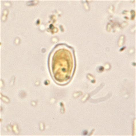 Yeast Cells In Stool by Cdc Dpdx Artifacts