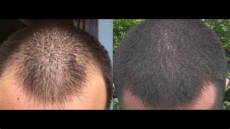 rogaine before and after pictures 1 year minoxidil hair regrowth results before and after