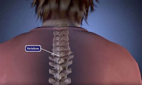 best spinal fusion surgeons spinal fusion terms and glossary orthoinfo aaos