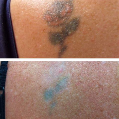 tattoo laser removal brisbane removal pictures revive cosmetic and skin clinic