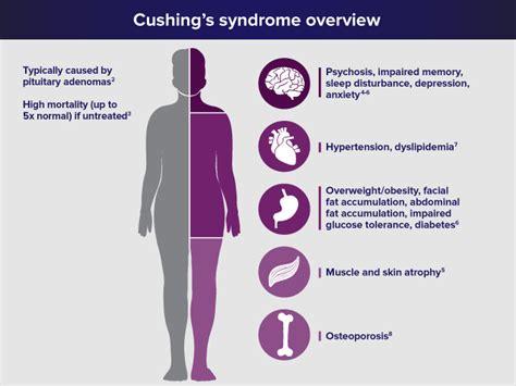 cushing s endogenous cushing s