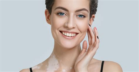 what is light treatment what is light therapy for vitiligo