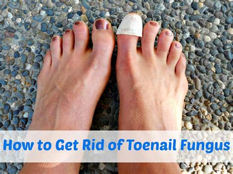 how to get rid of toenail fungus best herbal health