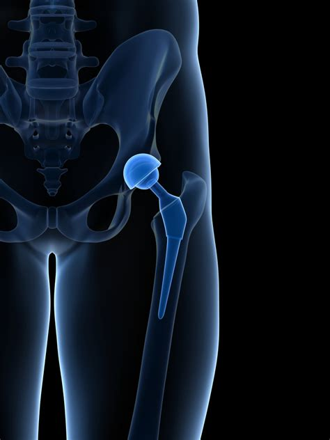 hip replacement why hip replacement is the best surgery in medicine fox13now