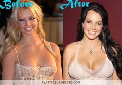 Britneys To Toe Plastic Surgery by Plastic Surgery And Lip Injections On