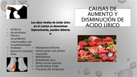 alimentos que reducen el acido urico causas de un nivel alto de 225 cido 250 el de