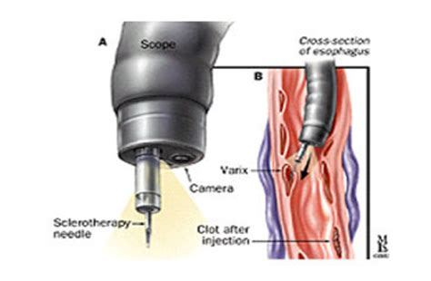 endoscopic sclerotherapy (est) in sector 52, noida | id