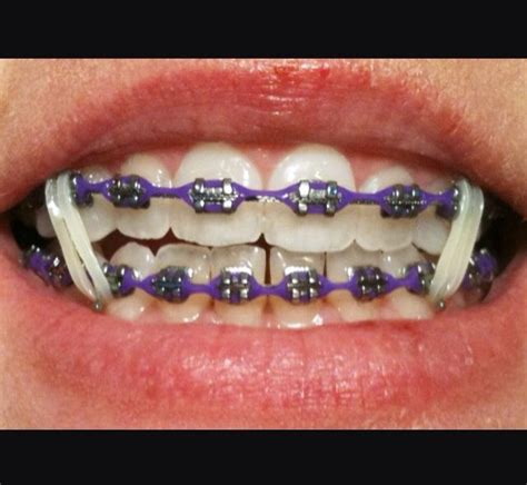 power chain colors 355 best images about braceface on