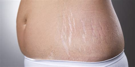 Miller Has Stretch Marks And Cellulite by Remove Stretch Marks And Cellulite Easy With Only 3