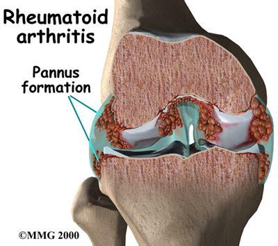 résumé definition rheumatoid arthritis differential diagnosis of the knee