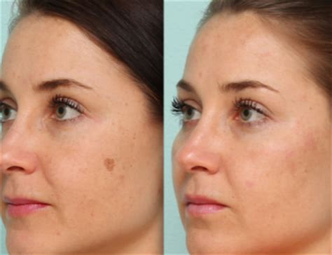 light patches on face brown spots on face skin causes raised patches