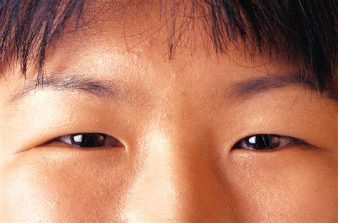 occidentalizar los ojos ldo