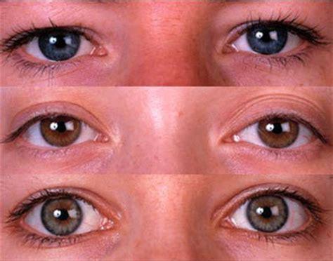 colore degli occhi diversi risposta di chiedi all esperto