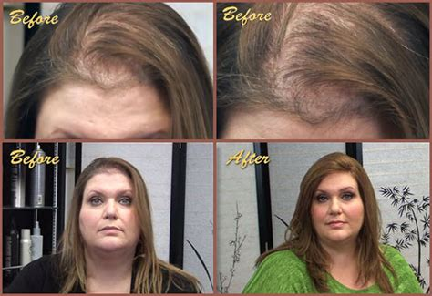 before and after photos alopecia antrogenetic women alopecia areta solutions trichotillomania hair