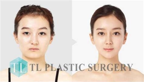 v shape jaw surgery korean plastic surgery ensuring safe and sleek v line
