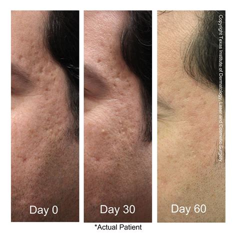 laser for acne scar texas acne clinic