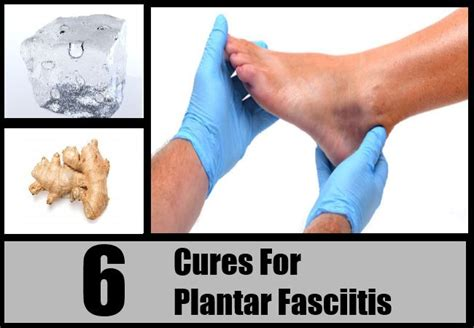 Planters Fasciitis Symptoms by 1000 Images About Plantar Fasciitis Heel Spurs