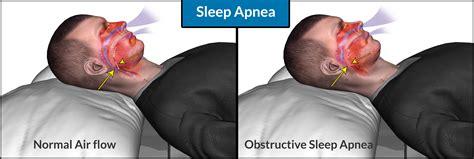 Sleep Apnea by Sleep Apnea Pillow One There Is An Sleep Apnea Pillow