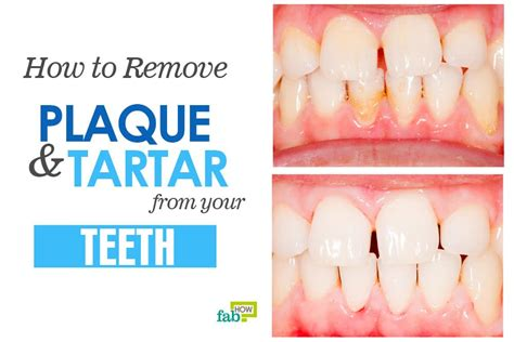 how to remove plaque from s teeth how to remove plaque and tartar from your teeth fab how
