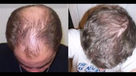 how long does castor take to grow hair how long does it take for castor oil to grow your hair