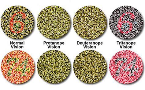 define color blindness classification of color blindness deficiencies