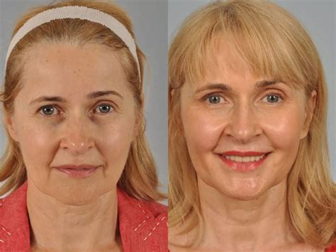 facelifts for women over 60 facelift costs for women over 60 botox gallery w cosmetic