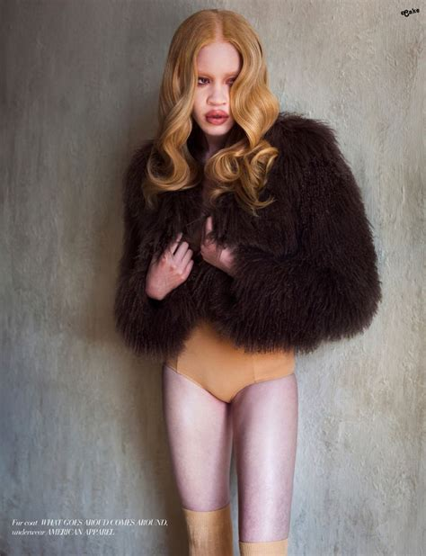 Diendra Set 48 best diandra forrest images on model americans and albinism