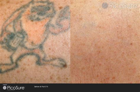 100 picosure tattoo removal uk andrea laser tattoo 100 picosure tattoo removal new york my tattoo