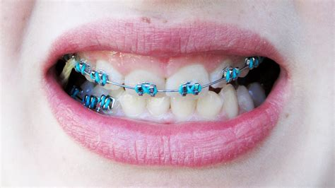 the gallery for gt cool braces colors ideas for