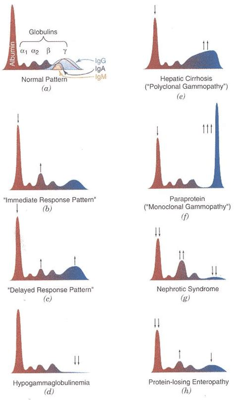 Protein Pattern Finder | 17 best ideas about clinical chemistry on pinterest