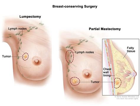 Breast Cancer Types Of Treatment In India