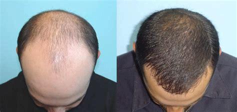 ravi shastri hair transplant dr erik nery implante capilar em fortaleza
