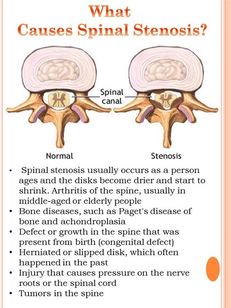 spinal for c section side effects related keywords suggestions for spinal stenosis