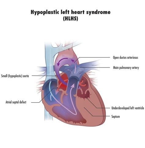 swinging heart syndrome 104 best images about dustin s hlhs hypoplstic left heart