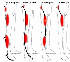 Image result for free pictures of sciatic nerve