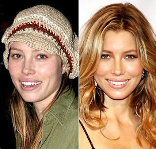 Biels Needs A Alba Makeover Secrets by Biel Plastic Surgery Before And After Nose