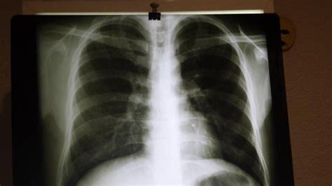 rx horizonte imagenes medicas y odontologicas imagen medica rx en iztacalco tel 233 fono y m 225 s info
